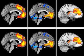 zona cerebro